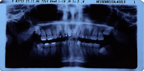 Dental X-rays cost